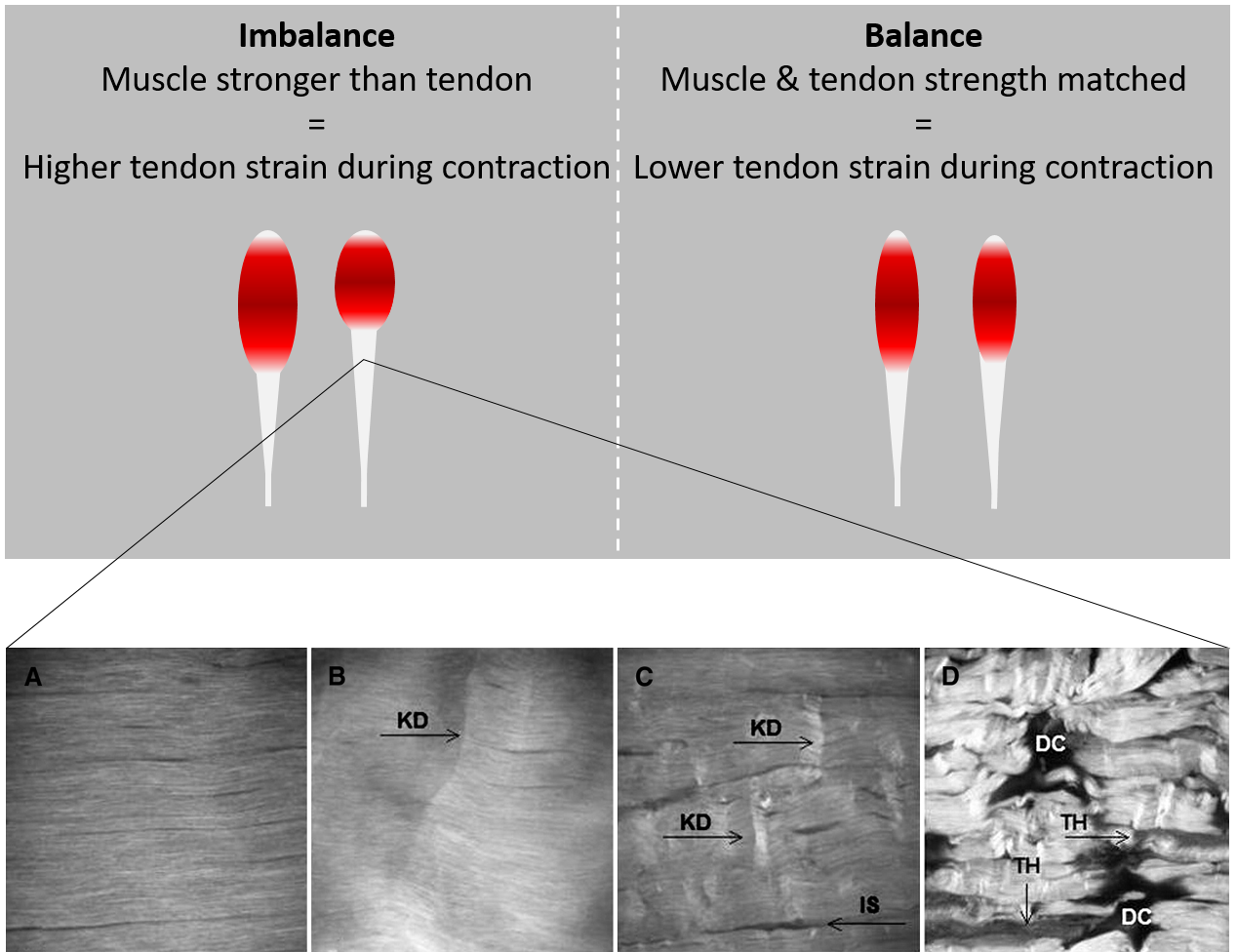 Imbalances in muscle and tendon strength and the relation